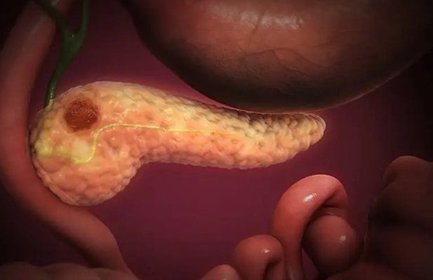 Científicos de Tel Aviv encuentra tratamiento para el cáncer de páncreas - Radio JAI